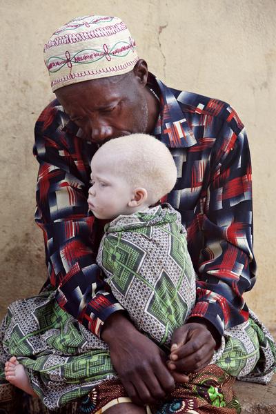 Страшная доля альбиносов Танзании